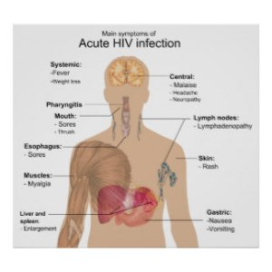 main_symptoms_of_acute_hiv_infection_poster-rf6e7c95423aa4a2185f0ec2eb2c908d1_cav_8byvr_324